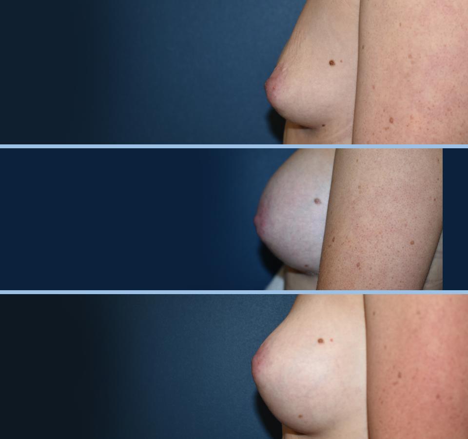 Breast Aug Pt 1 Left