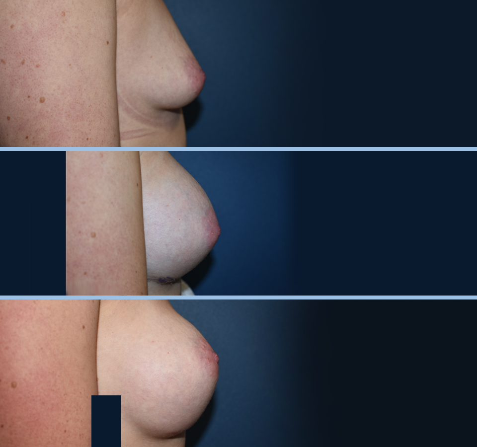 Breast Aug Pt 1 Right