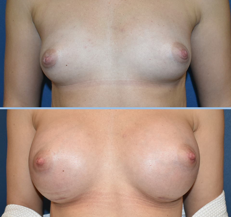 Breast Augmentation Pt 2 - Front