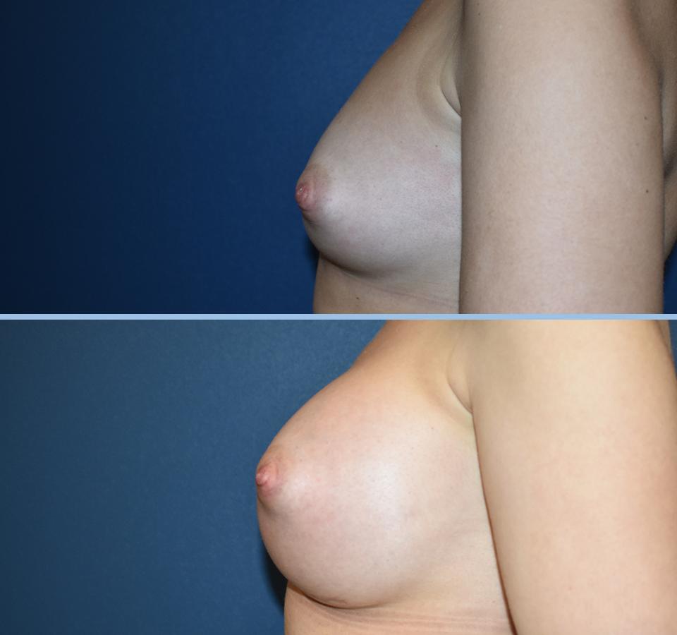 Breast Augmentation Pt 2 - Left