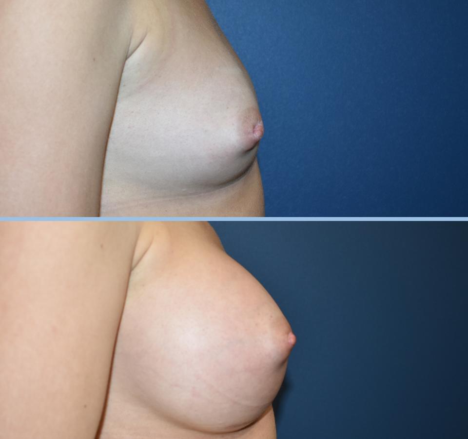 Breast Augmentation Pt 2 - Right