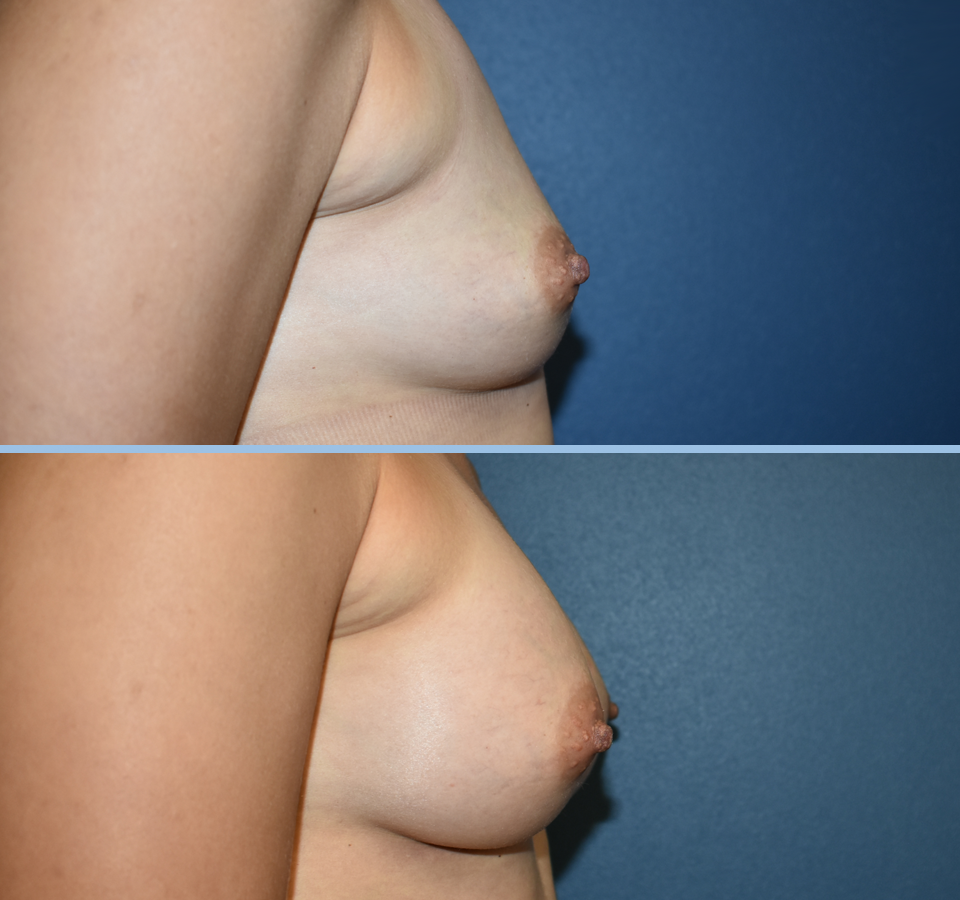 Breast Augmentation Patient 3 - Right