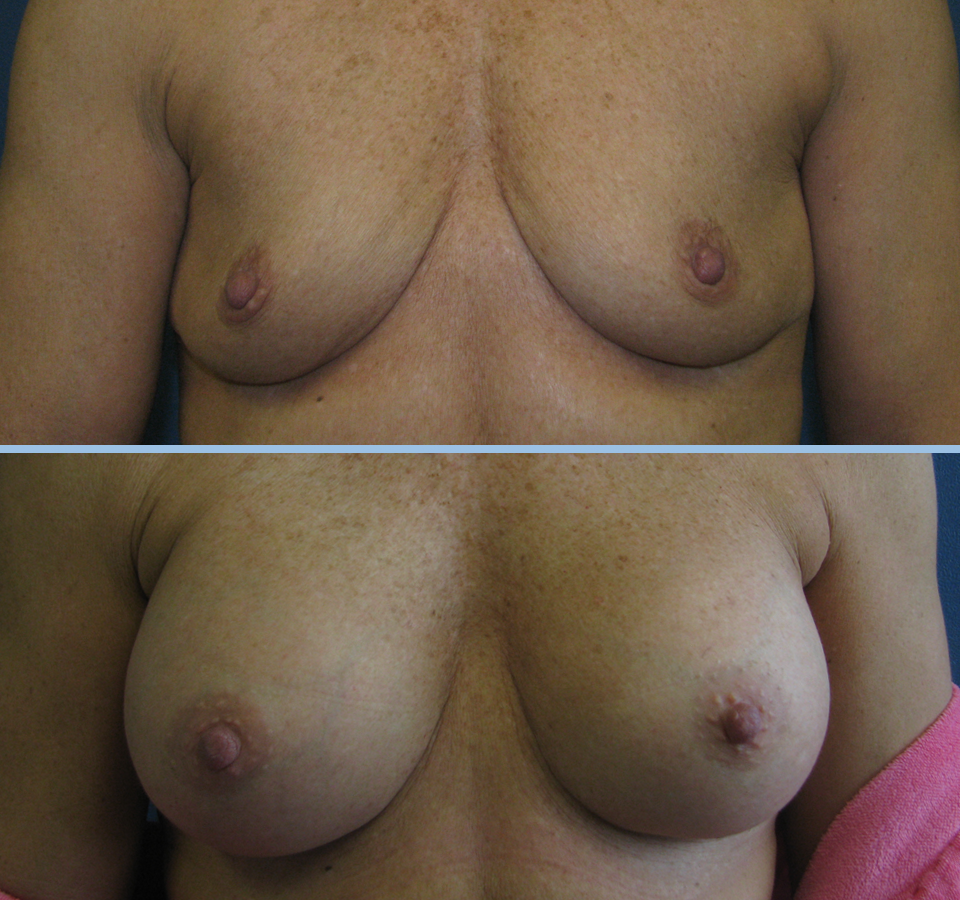 Breast Augmentation Patient 4 - Front