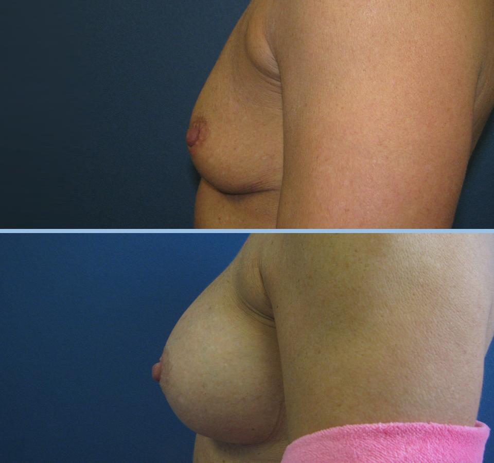 Breast Augmentation Patient 4 - Left