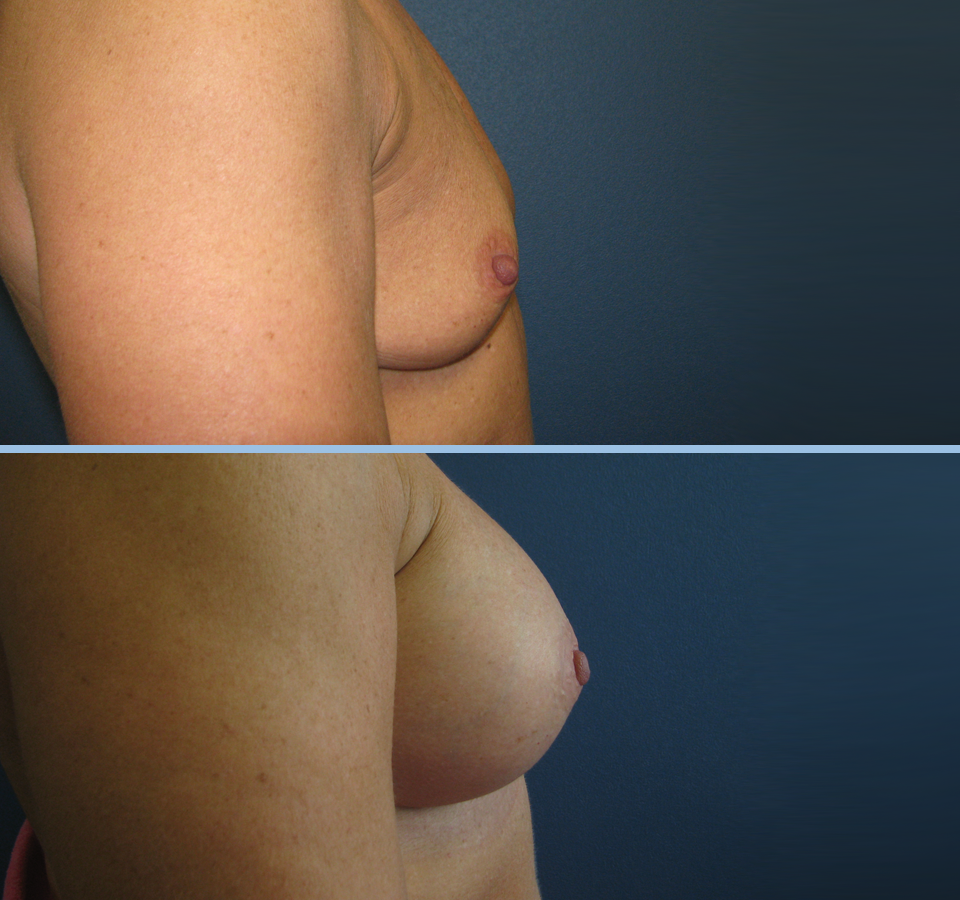 Breast Augmentation Patient 4 - Right