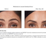 Botox Before and After - Woman - Forehead lines