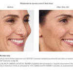 Botox Before and After - Woman - crows feet