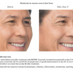 Botox Before and After - man - crows feet