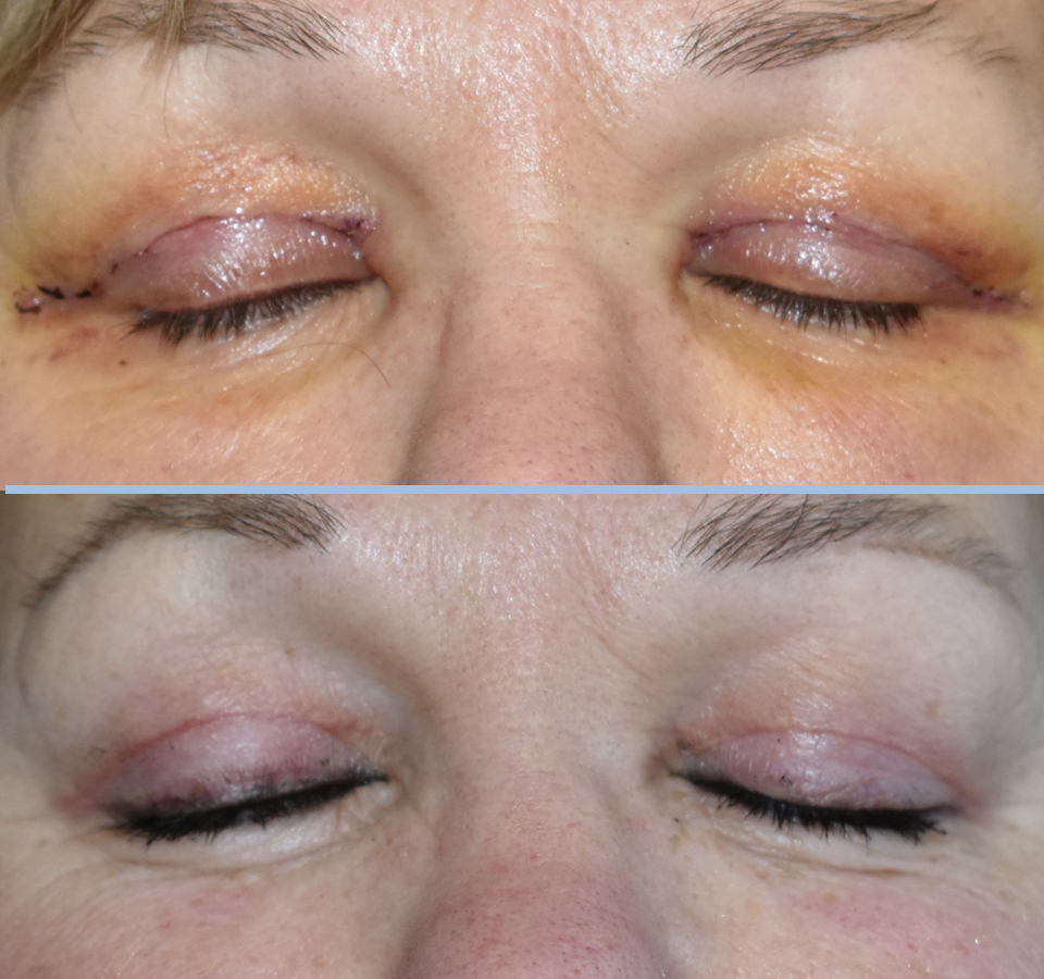 Eyelid Patient 4 Front View with Eyes Closed
