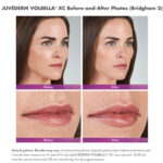 before and after photos of a woman with juvederm vobella lip injections