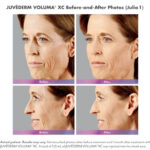before and after of woman with juvederm voluma and ultra plus injections around mouth and cheeks