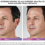 before and after of man with juvederm voluma and ultra plus injections around mouth
