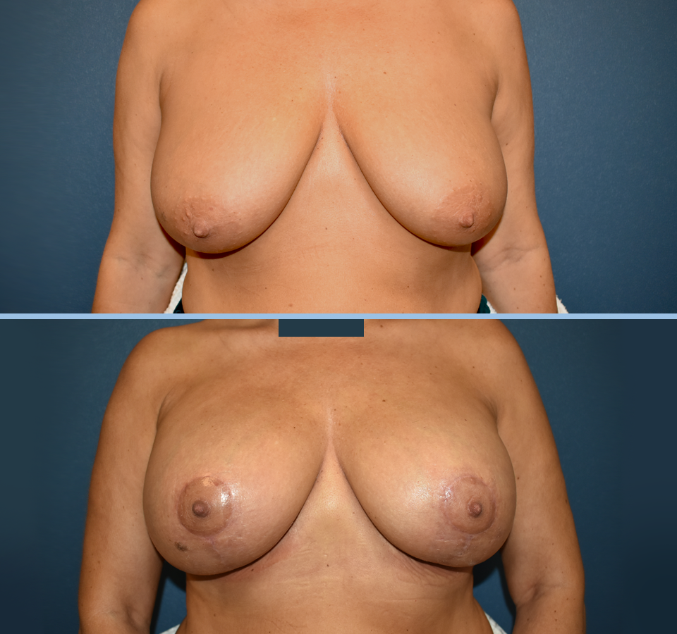 Breast Lift Patient 1 Front View