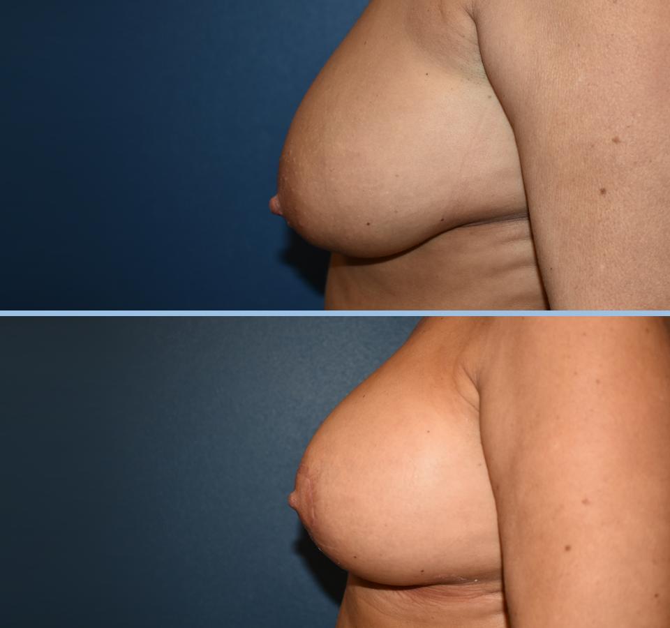 Breast Lift Patient 1 Left View