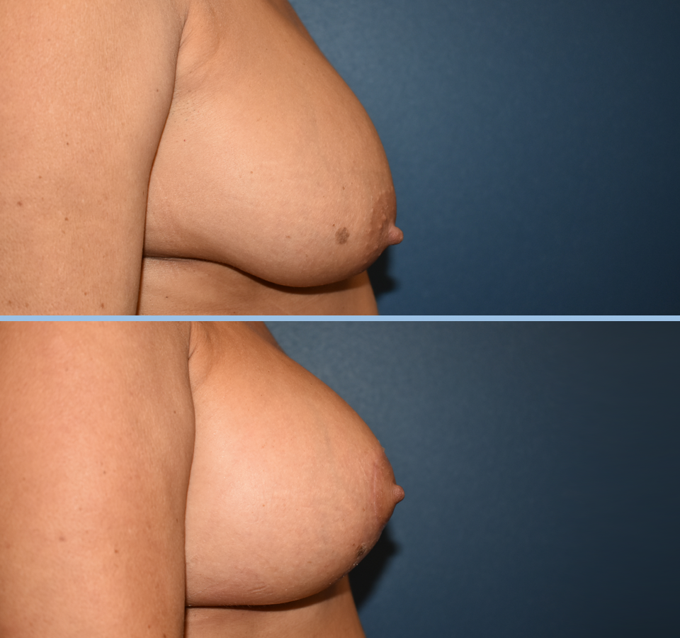 Breast Lift Patient 1 Right View