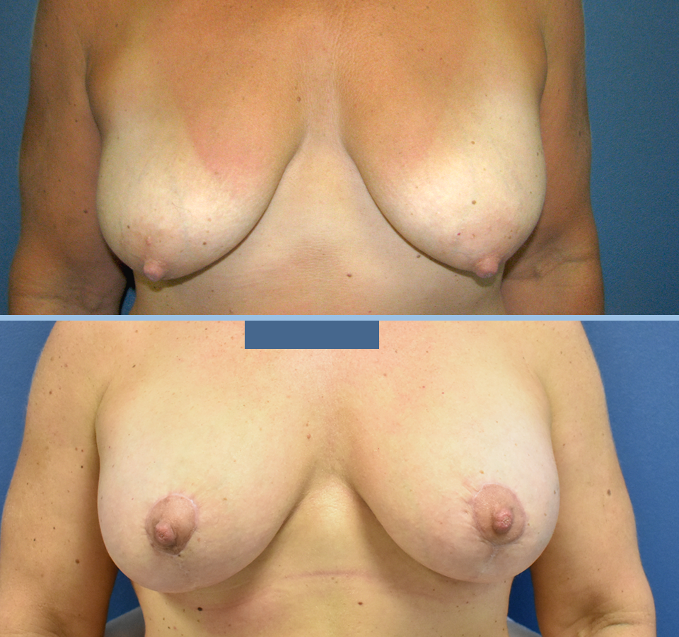 Breast Lift Patient 2 Front View