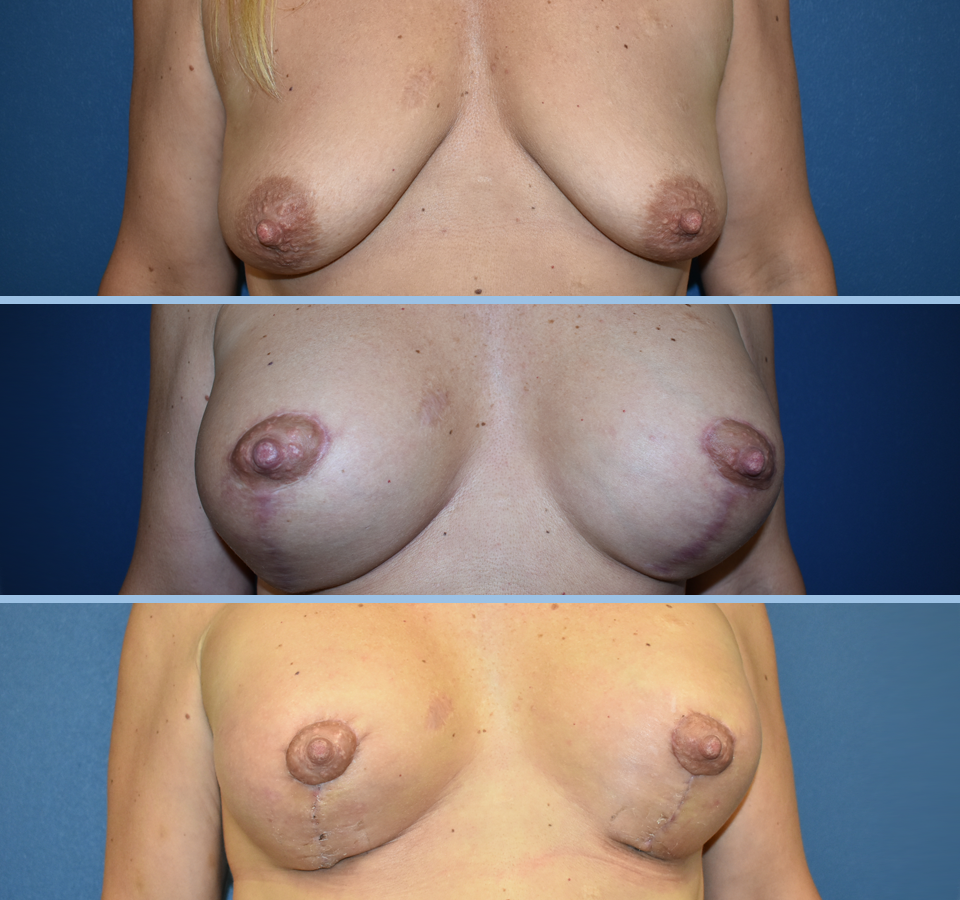 Breast Lift Patient 3 Front View