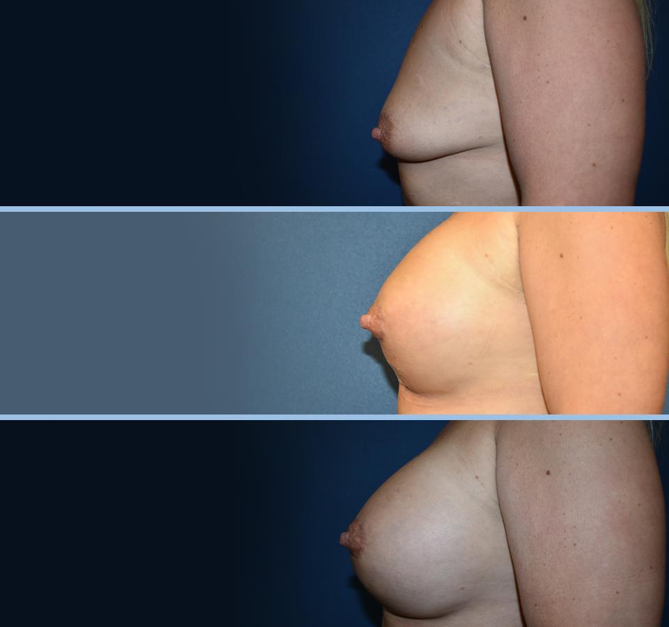Breast Lift Patient 3 Left View