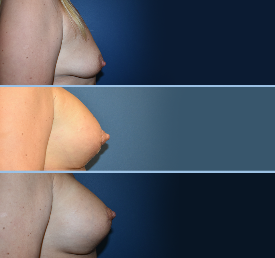 Breast Lift Patient 3 Right View