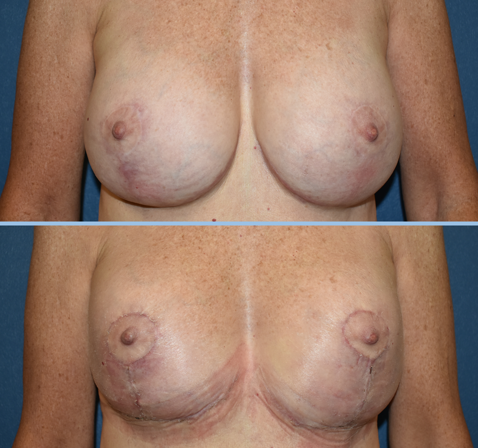 Breast Lift Patient 4 Front View