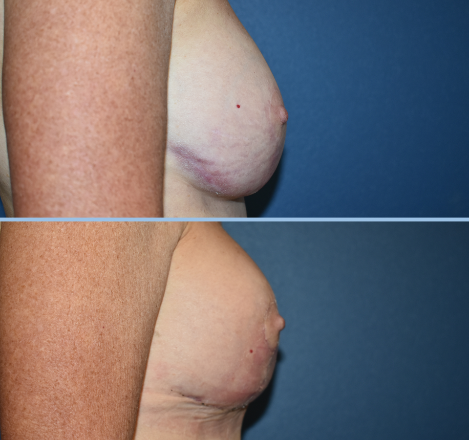 Breast Lift Patient 4 Right View