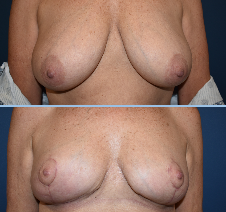 Breast Reduction Patient 1 Front View