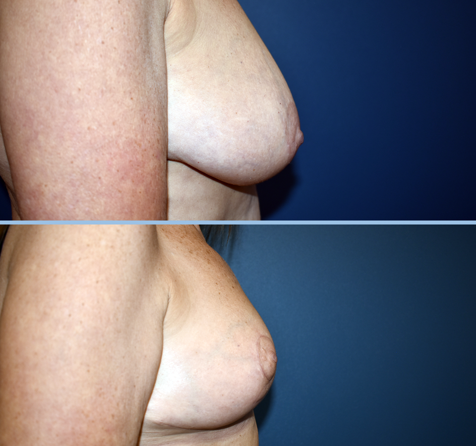 Breast Reduction Patient 1 Right View