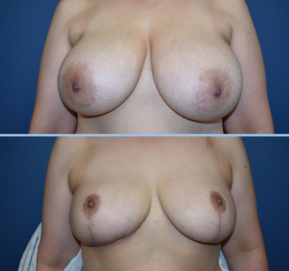 Breast Reduction Patient 2 Front View