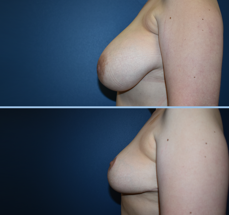 Breast Reduction Patient 2 Left View