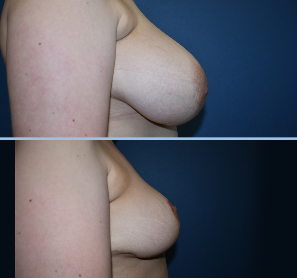 Breast Reduction Patient 2 Right View