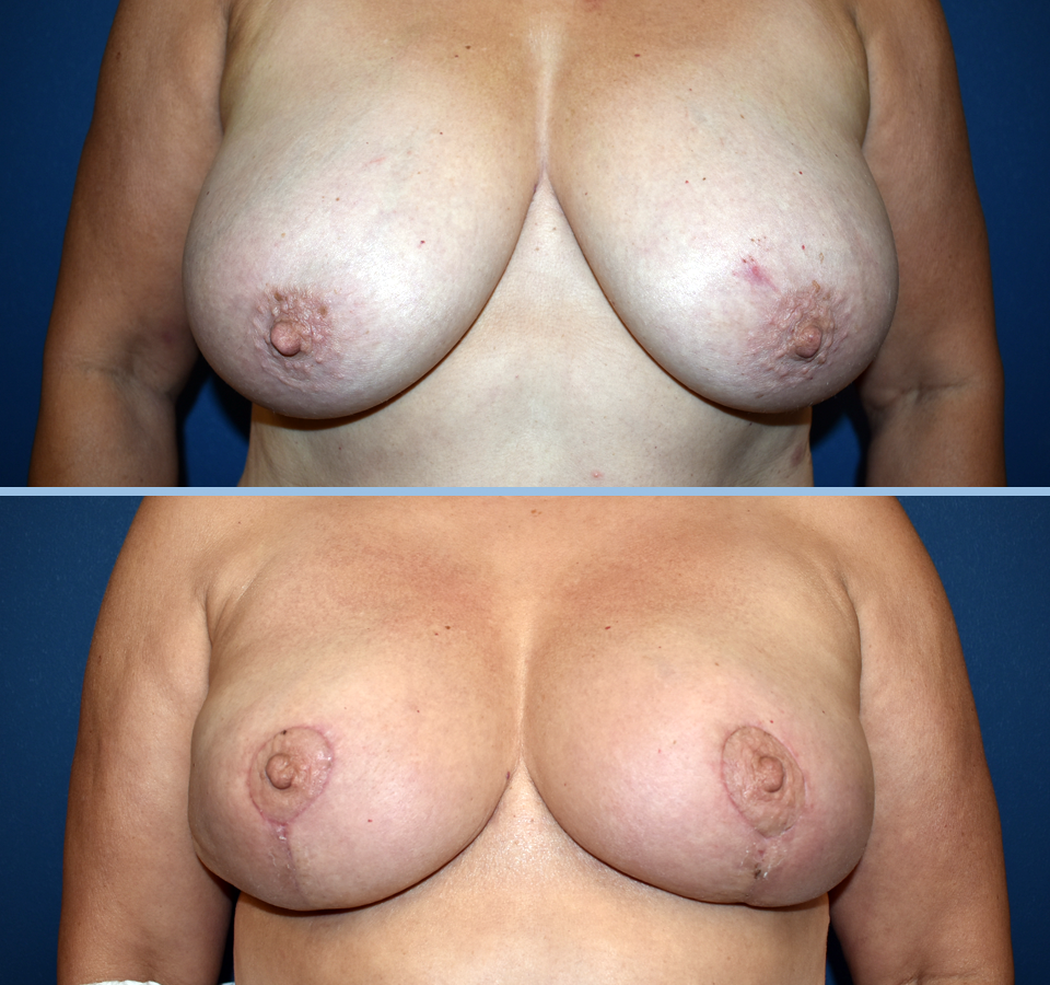 Breast Reduction Patient 3 Front View