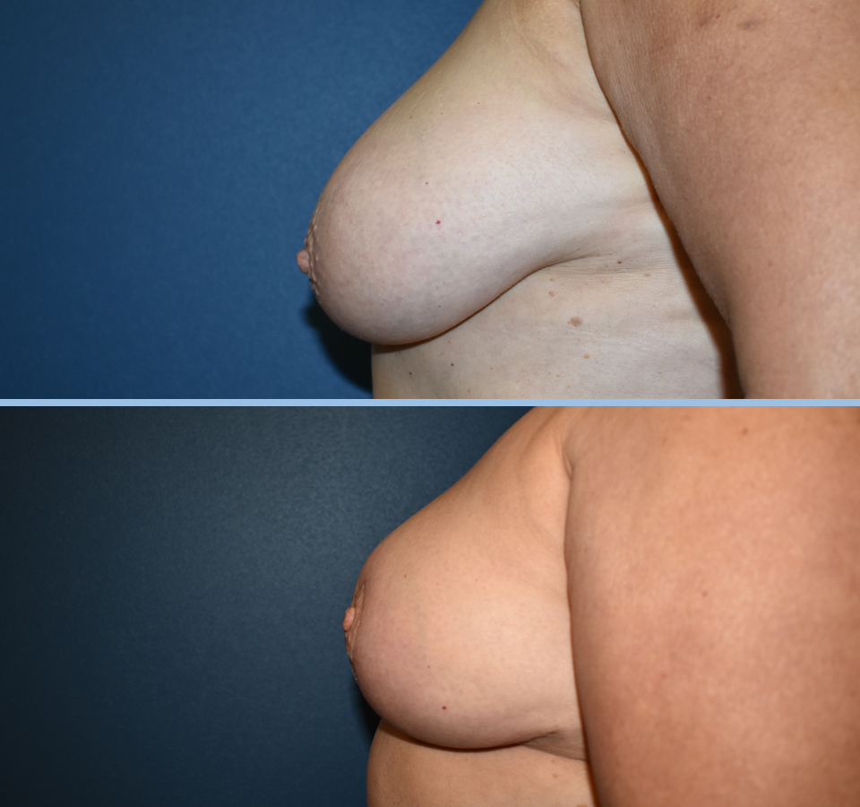 Breast Reduction Patient 3 Left View