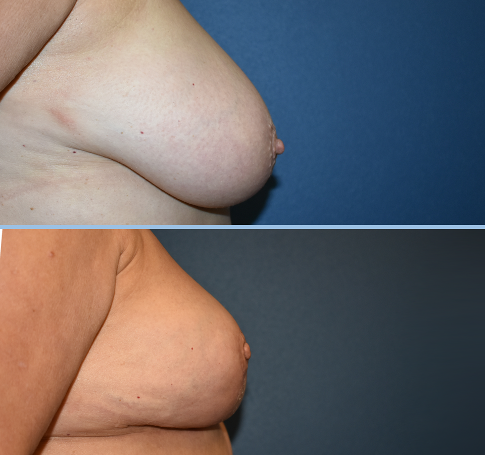 Breast Reduction Patient 3 Right View