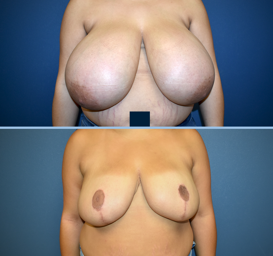 Breast Reduction Patient 5 Front View