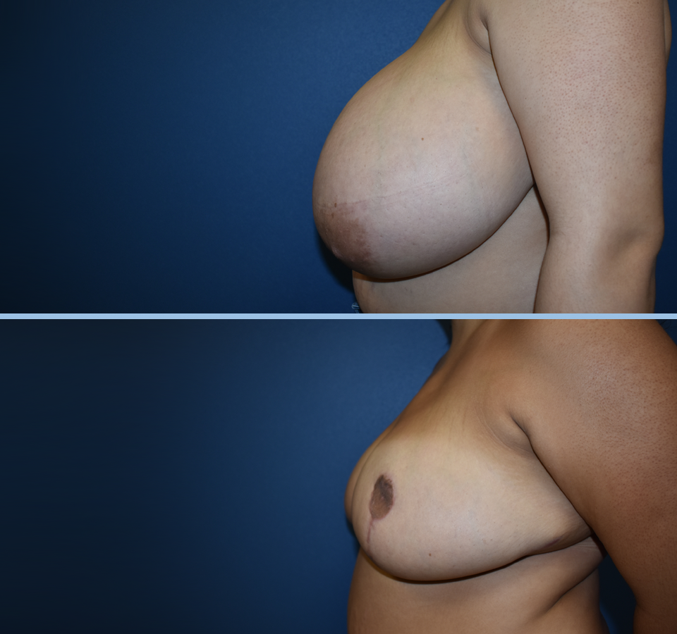 Breast Reduction Patient 5 Left View