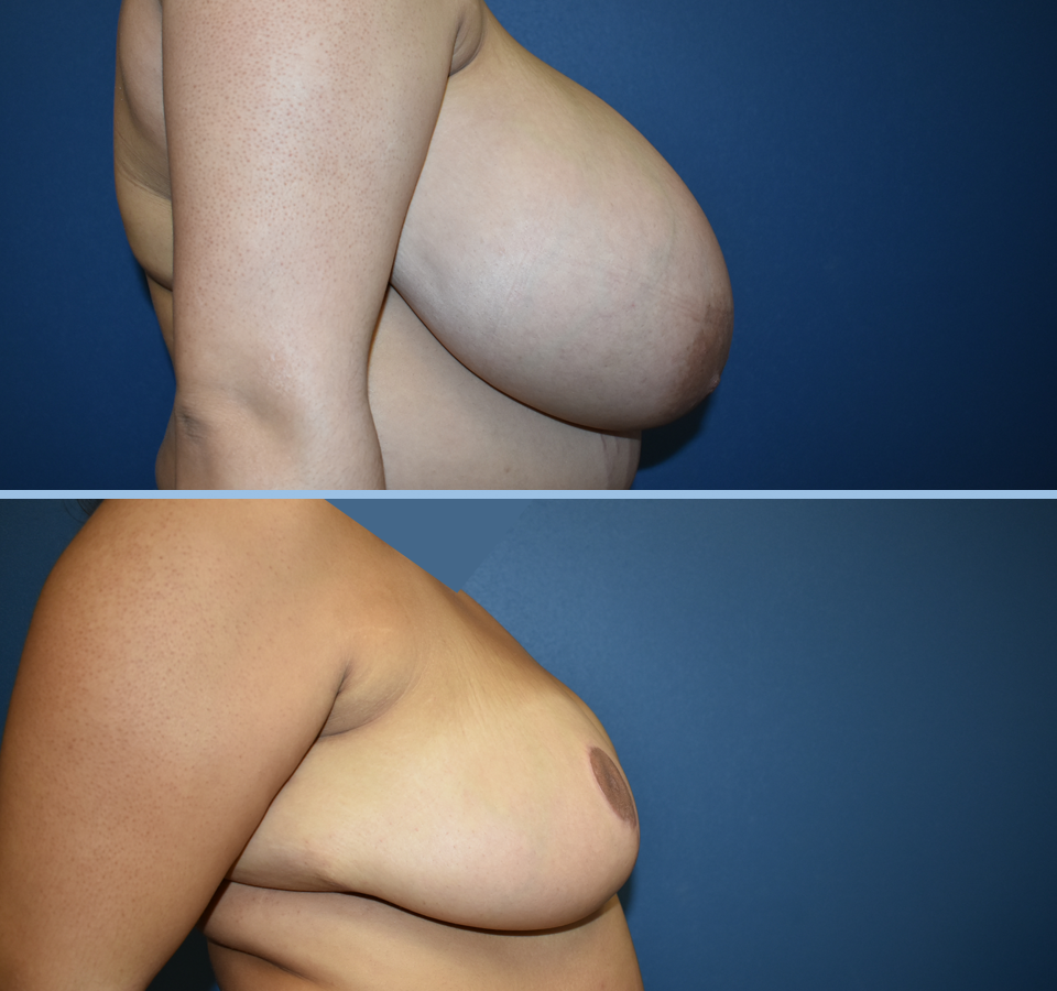 Breast Reduction Patient 5 Right View
