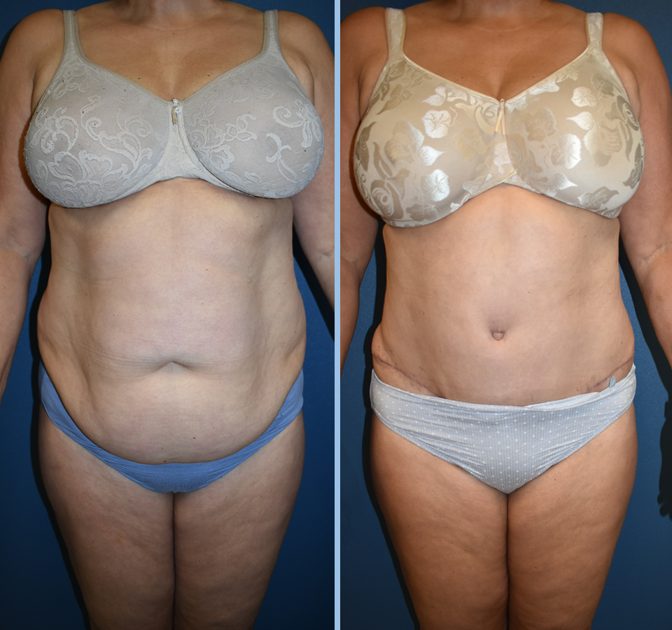 Tummy Tuck Patient 1 Front View