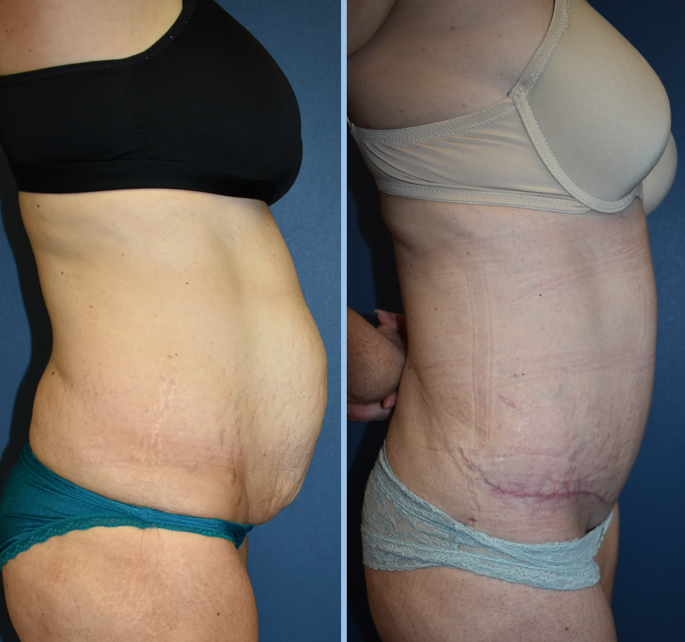 Tummy Tuck Patient 3 Right View
