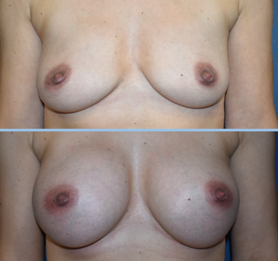 Breast Augmentation Patient 5 Front View
