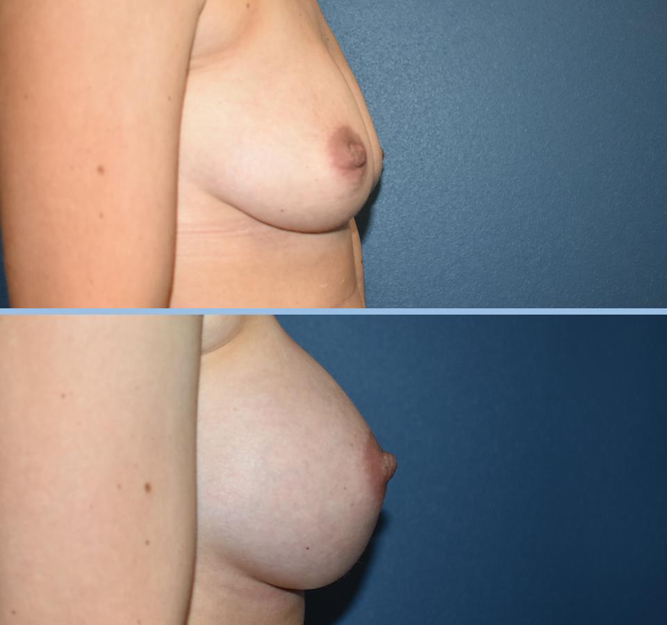 Breast Augmentation Patient 5 Left View